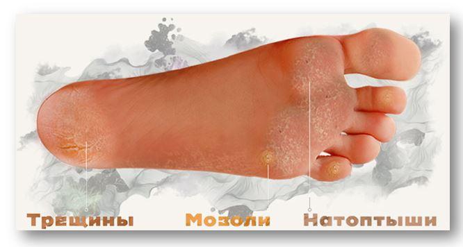 Попробуйте педикюрные носочки от МИРРА!