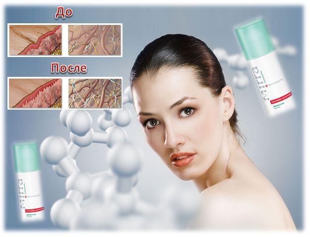 «Гель-бальзам репарирующий от Mirra – «скорая помощь» для кожи: быстро снимает дискомфортные ощущения, устраняет покраснение, заживляет микроповреждения, снижает последствия ожогов