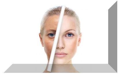 Для нейтрализации кислот пилинга необходимо обработать кожу пилинг нейтрализатором Гликолим Н