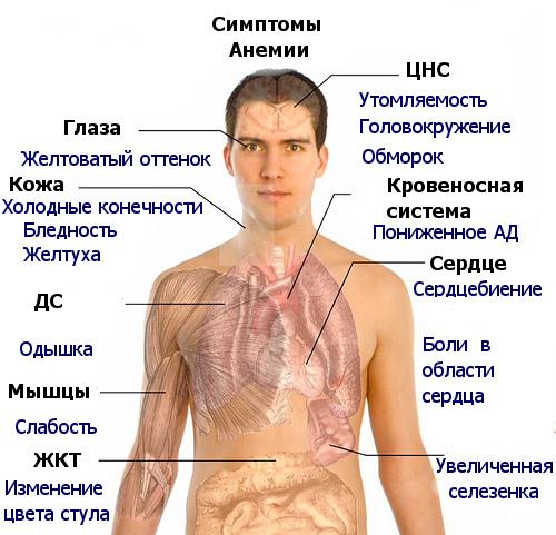 Железодефици́тная анеми́я (ЖДА) — гематологический синдром, характеризующийся нарушением синтеза гемоглобина вследствие дефицита железа и проявляющийся анемией и сидеропенией. Основными причинами ЖДА являются кровопотери и недостаток богатой гемом пищи и питья.