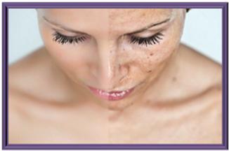 ФЕРМЕНТАТИВНЫЙ ПИЛИНГ – средство уникальное, которое можно наносить на любой тип кожи