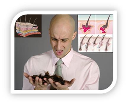Потеря волос - выпадение волос