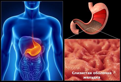 Язва желудка - гастрит -лечение - профилактика